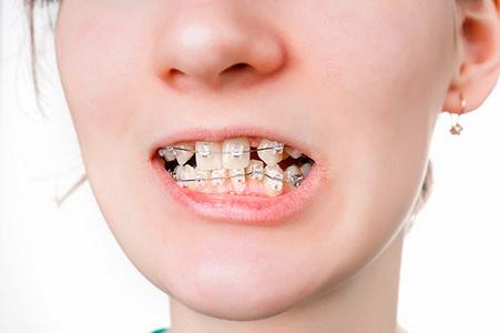 детская стоматология правильный прикус